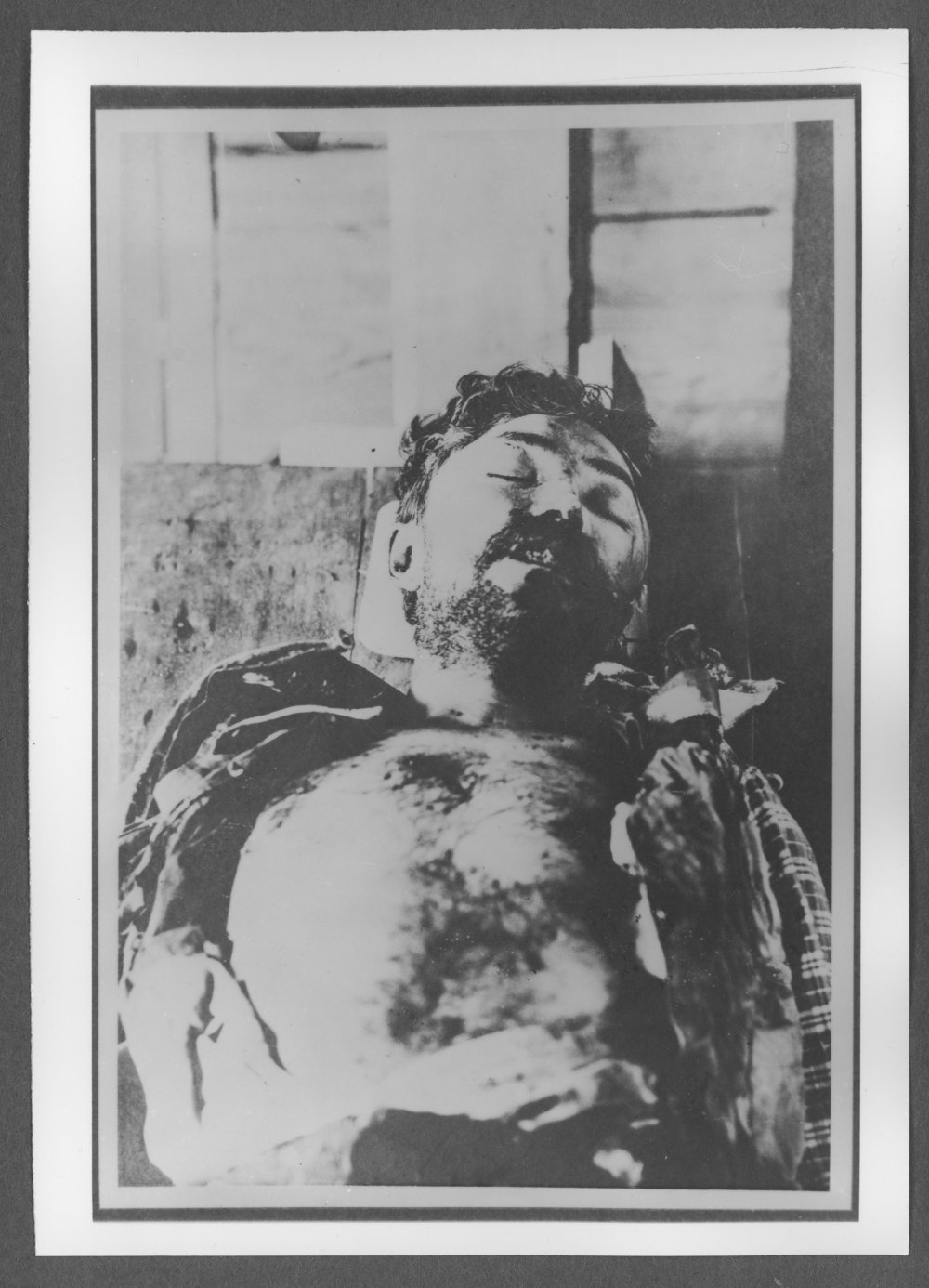 Scenes of Sherman County, Kansas - Train robber who was shot at the Barthalomew home, August 1900.