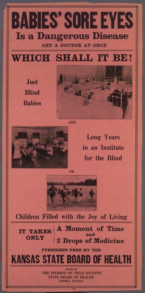 Babies' sore eyes is a dangerous disease - Page